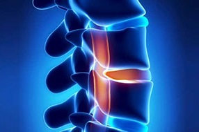 Facet Joint Disorders