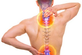 Failed Back Surgery Complications